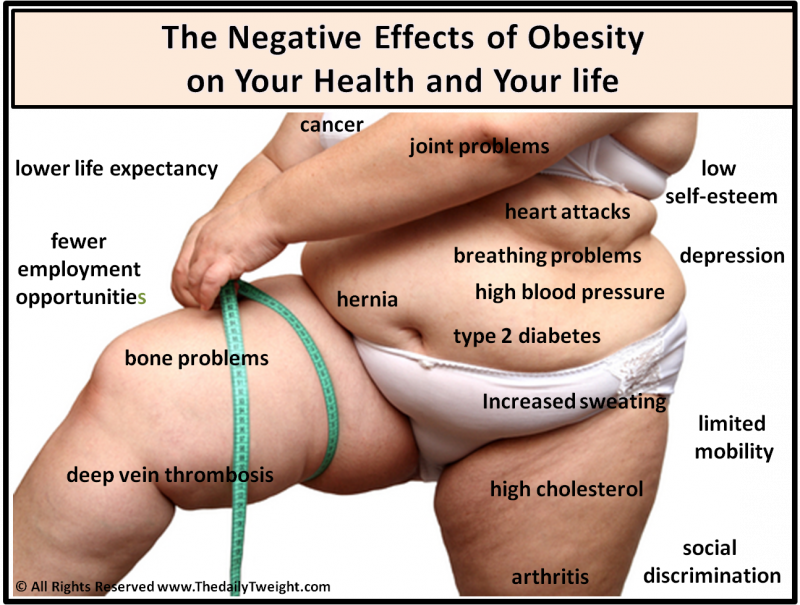 Negative Effects of Obesity